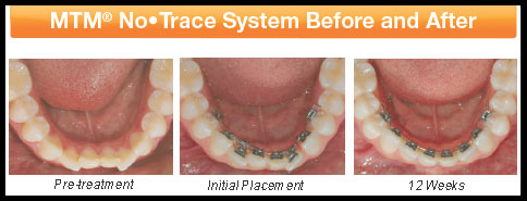 MTM® invisible braces