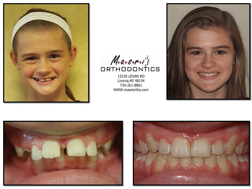 Before and after adult braces think, that