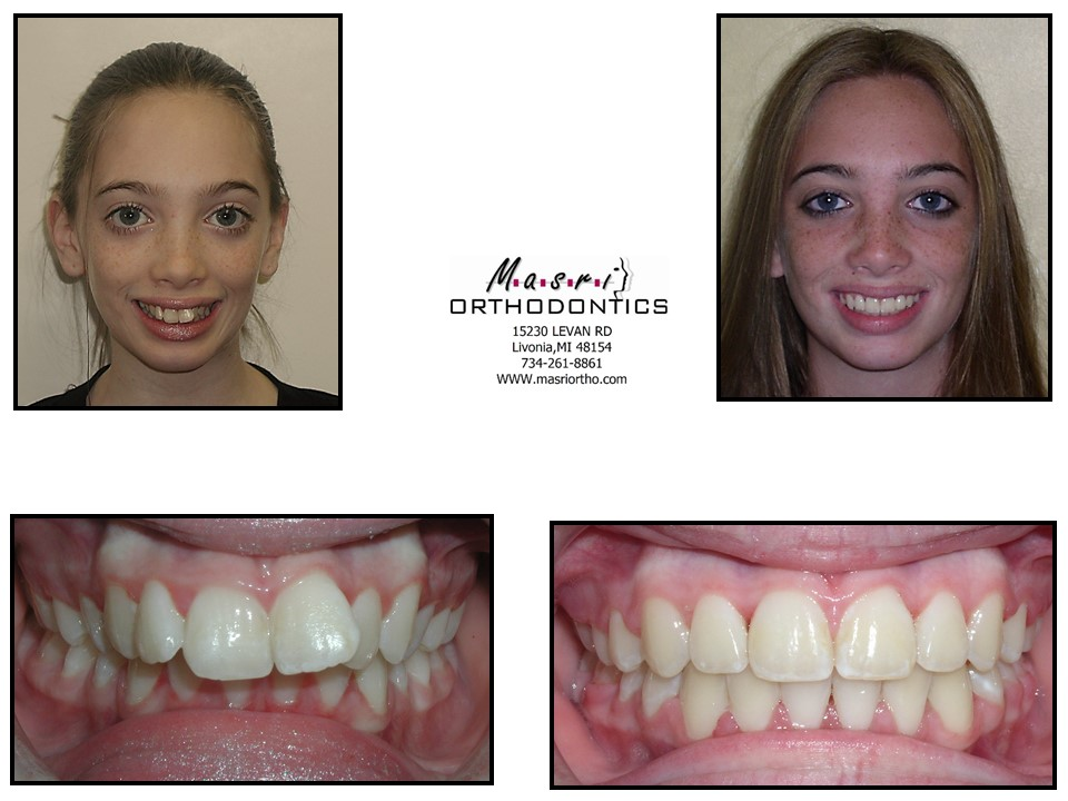Apologise, but, before and after adult braces already