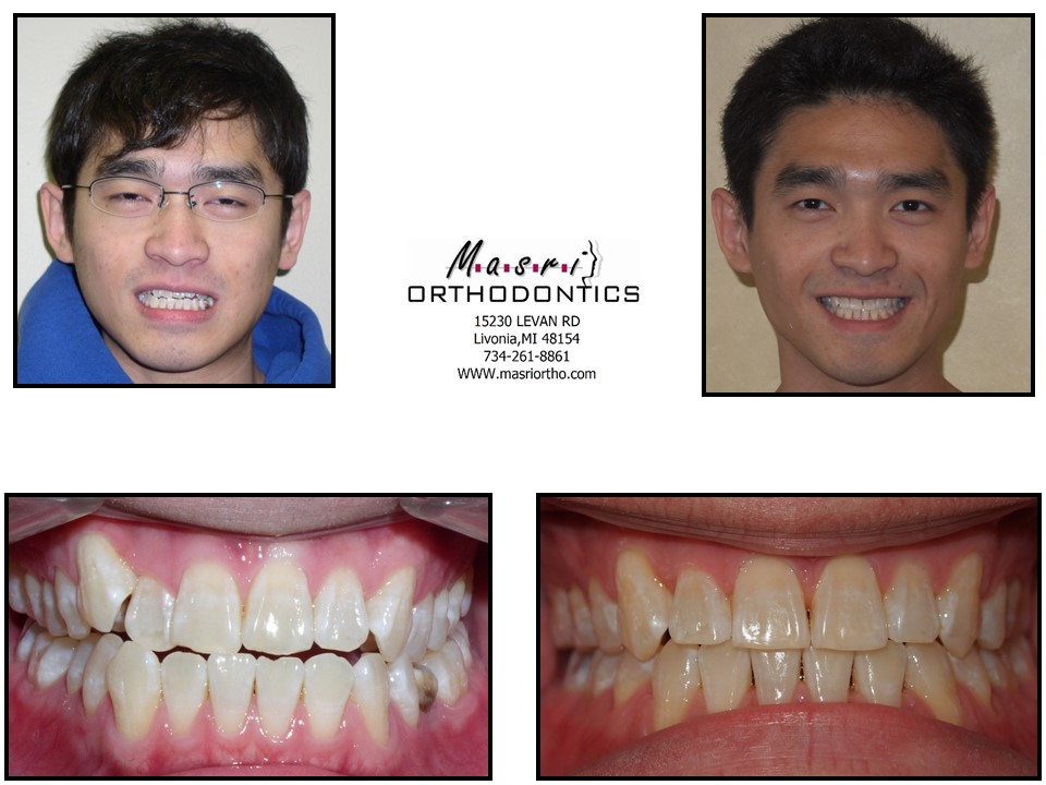 Before & After | Masri Orthodontics