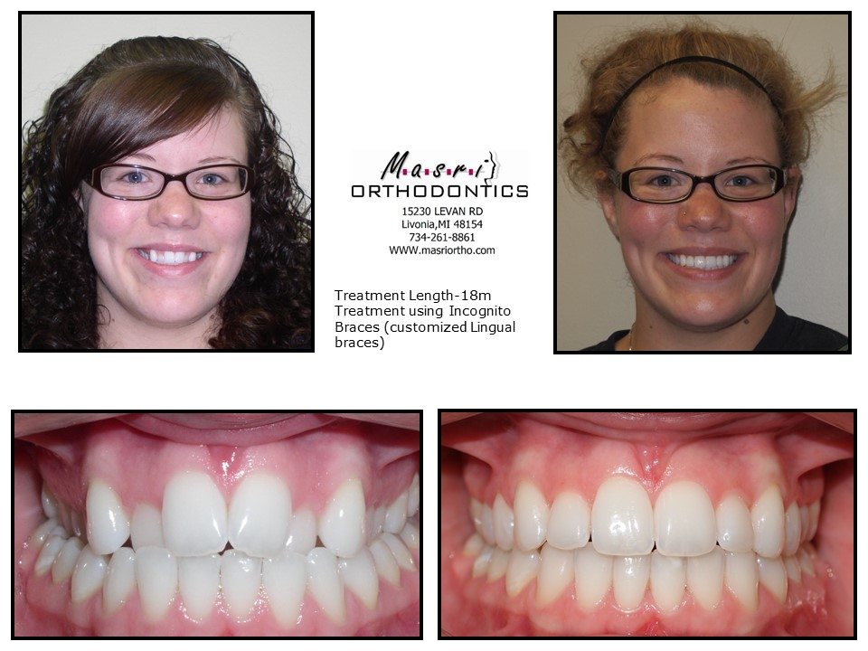 before Adult after braces