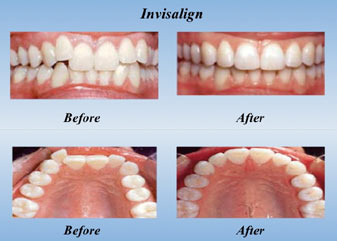 How Long Does Invisalign Take Masri Orthodontics