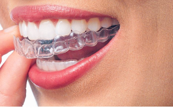 Invisalign questions answered by Livonia Michigan Orthodontist