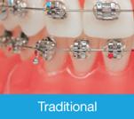 Damon-Self-Ligating-Braces-Vs-Traditional-Braces