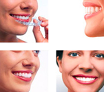 Invisalign-For-Teenagers-And-Adults