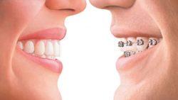 invisalign-vs-braces