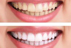 Teeth Whitening by Masri Orthodontics Livonia