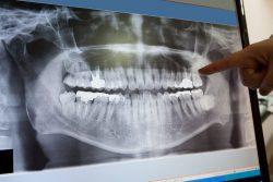 Digital Dental X Ray Importance