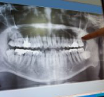 digital-dental-x-rays